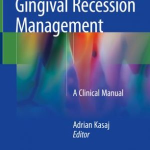 Gingival Recession Management - A Clinical Manual By Adrian Kasaj