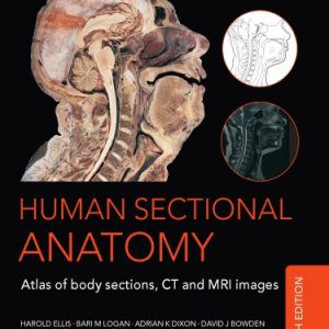 Human Sectional Anatomy, Atlas of Body Sections, CT and MRI Images, 4th Edition By Adrian K. Dixon; David J. Bowden; Harold