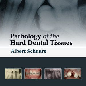 Pathology of the Hard Dental Tissues By Albert Schuurs