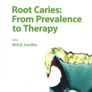 Root Caries - From Prevalence to Therapy by M. Rocha de Olivera Carrilho