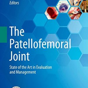 The Patellofemoral Joint, State of the Art in Evaluation and Management By Alberto Gobbi