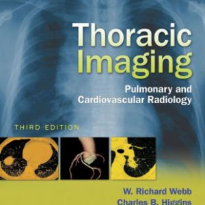 Thoracic Imaging - Pulmonary Radiology 3rd Edition by Webb