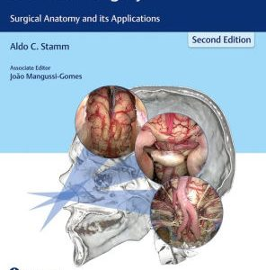 Transnasal Endoscopic Skull Base and Brain Surgery 2nd Edition by Stamm