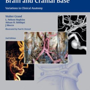 Vasculature of the Brain and Cranial Base by Walter Grand
