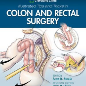 Cleveland Clinic Illustrated Tips and Tricks by Steele