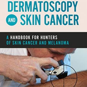 Dermatoscopy and Skin Cancer by Rosendahl