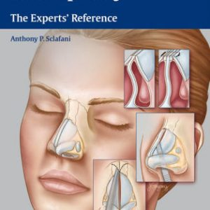 Rhinoplasty - The Experts' Reference by Sclafani