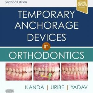 Temporary Anchorage Devices in Orthodontics 2nd Ed by Nanda